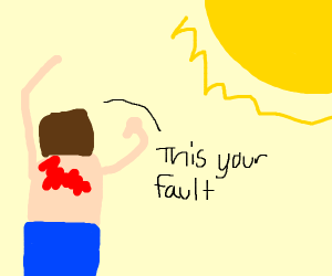 man gets mad at sun for causing sunburn