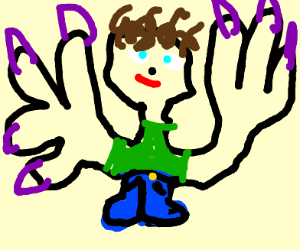 Deformed Man With Giant, Terrifying Hands