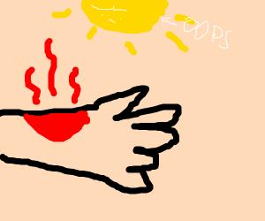Sizzling Sunburn