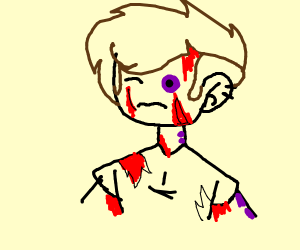 Beat up but with blood everywhere