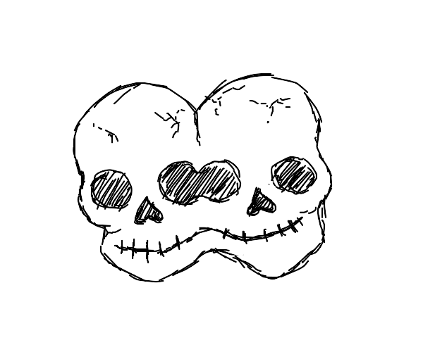 Conjoined twins skull