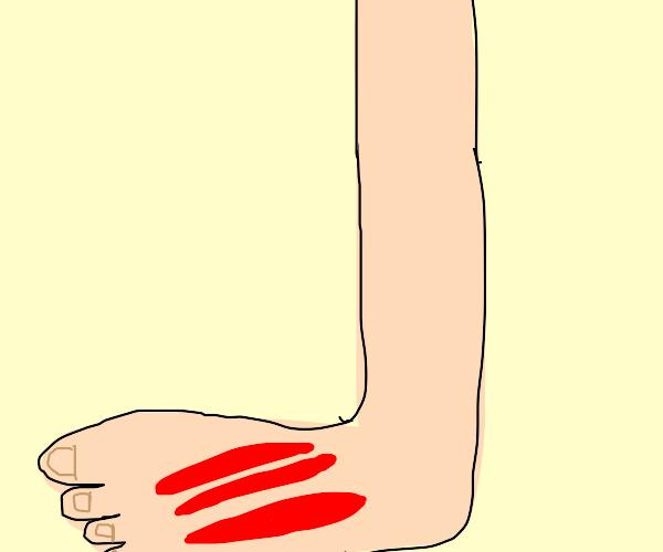 Slash marks on feet