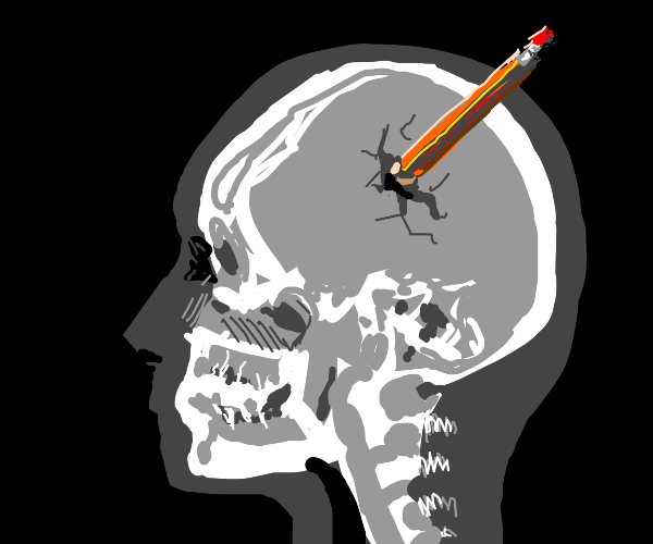 Guy with pencil stuck in his skull