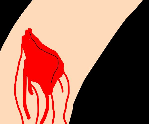 bloody skin