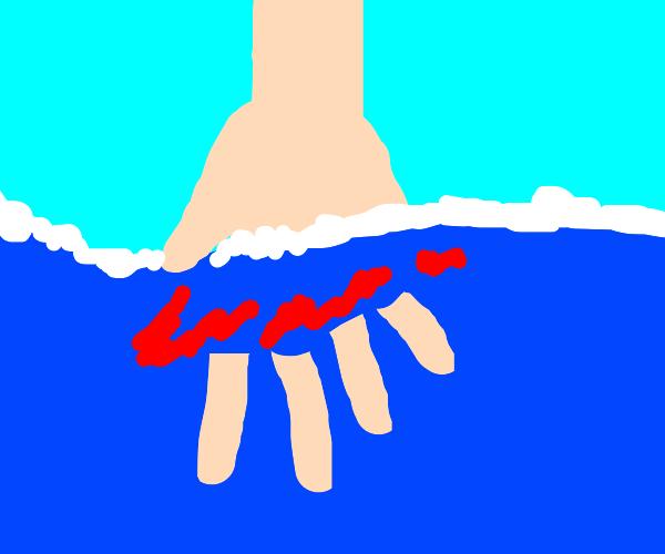 the sea bites someones finger off