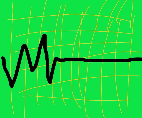 Monitor flatlines