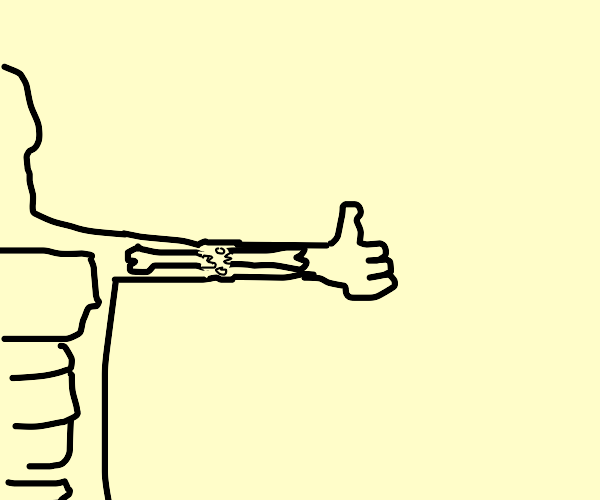 Man breaks arm from giving thumbs up