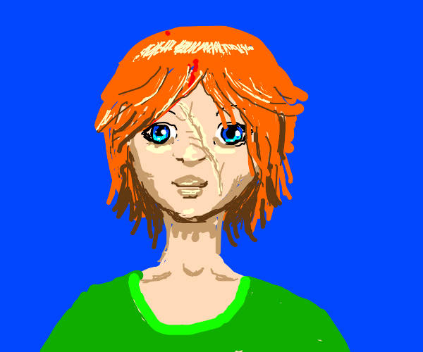 Ginger with blue eyes and big scar