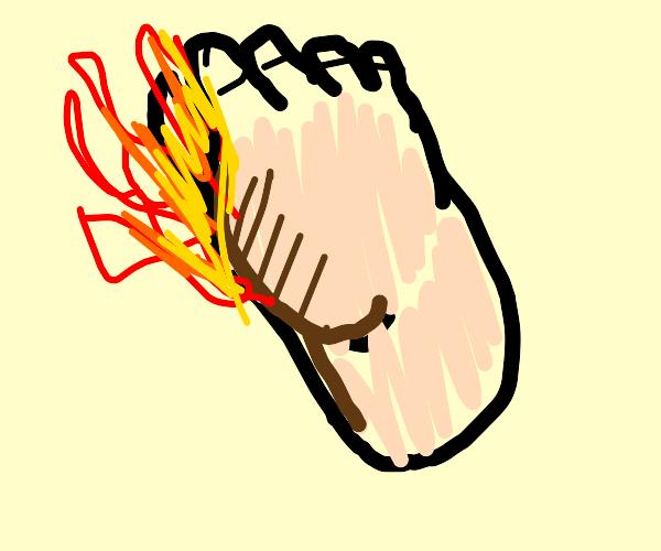 Burning foot