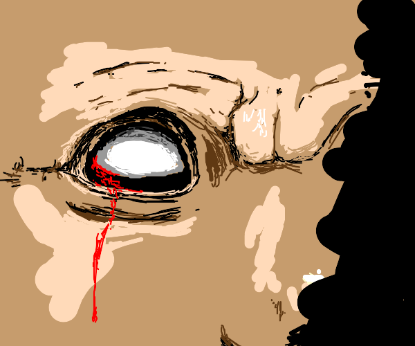 Bleeding eye stares at you