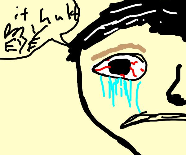 Man's Eye Hurts
