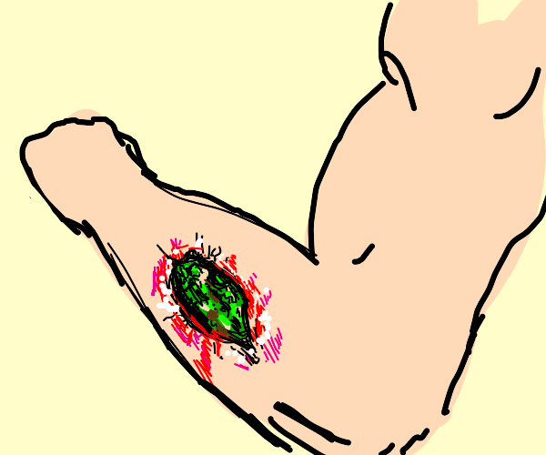 Infected arm wound