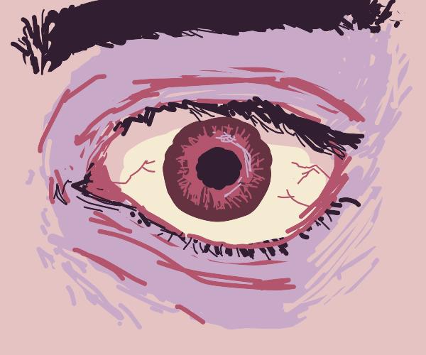 a red eye