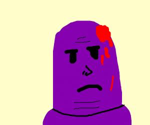 Thanos has a boo boo on the head