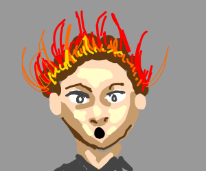 Dude has burning hair