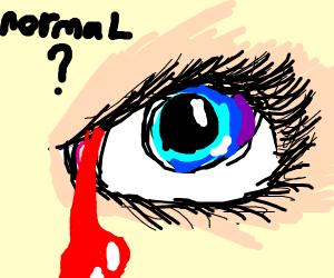eye blood normal???