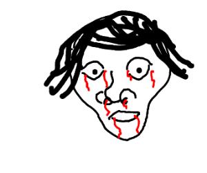 blood coming out of facial cavities
