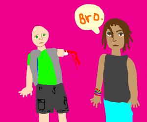 Bro loses his arm