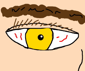 close up of an eye with a yellow iris