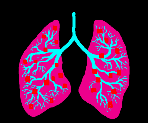 Red squares in Lungs