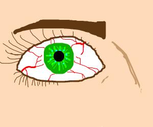 bloodshot green eye