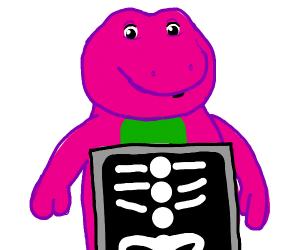 Barney is having an x-ray
