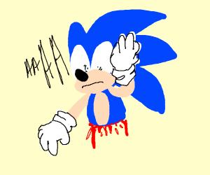 Sonic has lost his torso