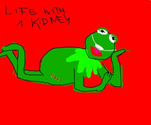 Kermit Donates a Kidney