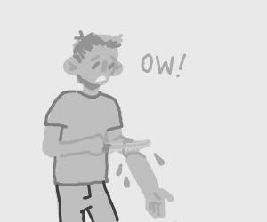 Man cuts his arm