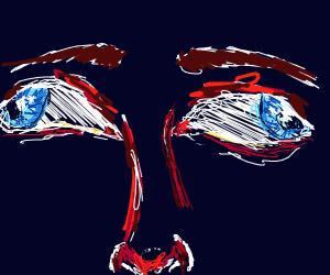 Cross-eyed but outwards (blue eyes)