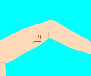 Sad arm