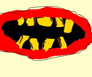 Gross teeth