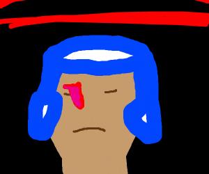 Very injured amateur boxer