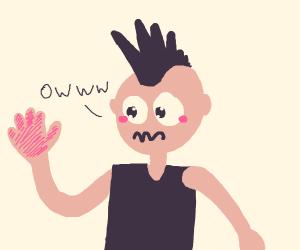 weird haired dude hand burned