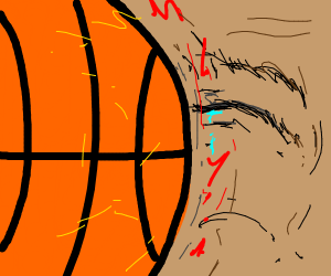 smashed in the face with basketball