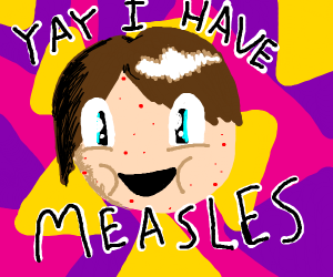 Yay! I have measles!