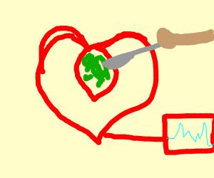 Open heart surgery??