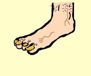 nasty foot