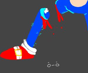 sonics ampulated leg