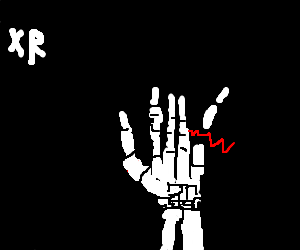 X-rays of a hand with broken finger