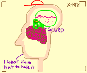 Brain parasite swells in mans head.