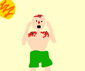 Worst sunburn of my life.