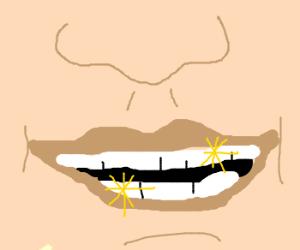 Blindingly white teeth!