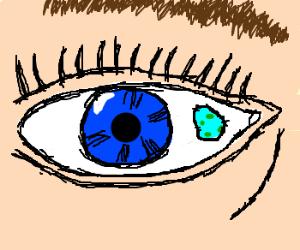 an amoeba came into my eye