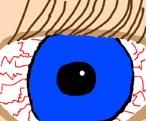 Close up of a bloodshot blue eye.