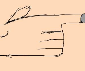 sliver under nail