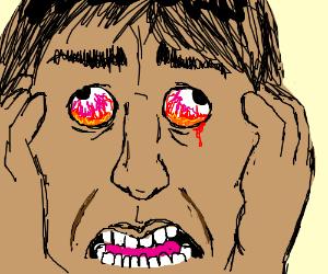"Bloodshot eyes - ""they BURN!"""