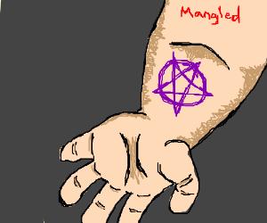 purple markings on a mangled arm