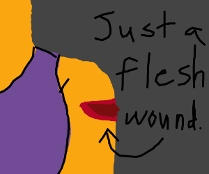 tis but a flesh wound!