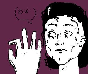 Michael Jackson broke his finger